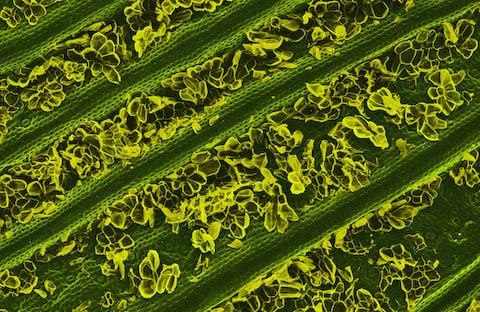 caren alpert food electron microscope photography