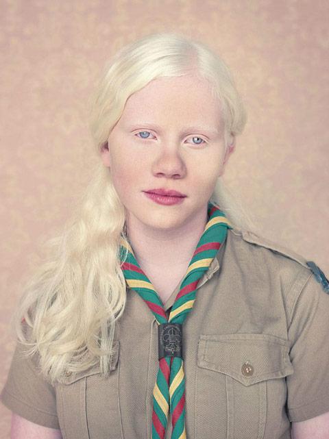 Stunning Portraits of ALBINOs by Gustavo Lacerda