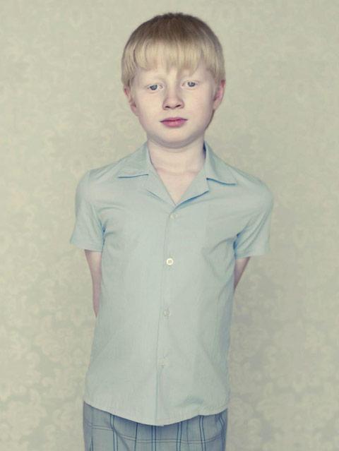 albino-portrait