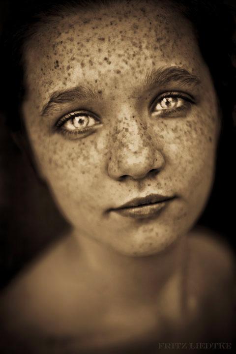 Fritz-Liedtke photogravure freckles