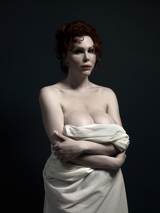 Provocative Portraits Of Extreme Plastic Surgery by Phillip Toledano (NSFW)