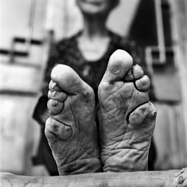 Powerful Photo Series Documents the Final Generation of Foot Binding in China