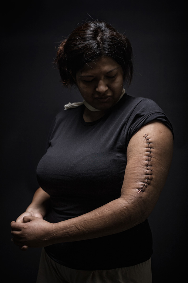 'The Other Side of the American Dream': Powerful Portraits Document the Abuse of Migrants Passing Through Mexico