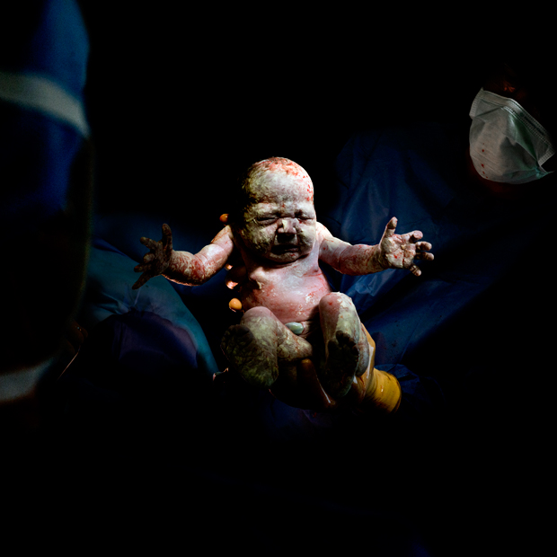 Raw and Unflinching Photographs of Newborn Babies Directly After C-Sections