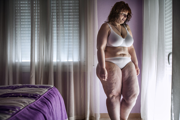 A Deeply Human Glimpse at One Woman's 120 Pound Weight Loss Through Gastric Bypass Surgery