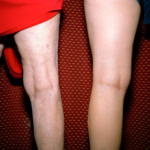 cox-same-knees