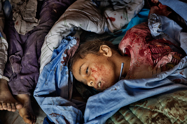 A girl lies dead in a makeshift morgue