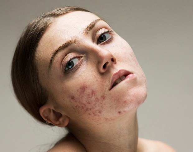 These powerful photos challenge the stigma around skin conditions
